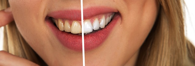 odstíny zubů